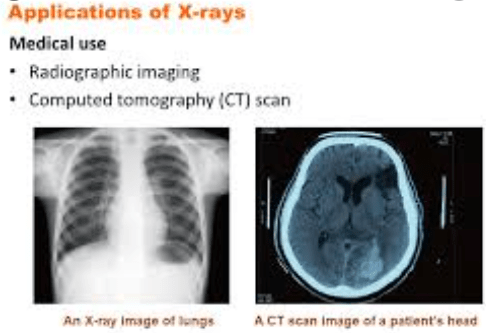 Uses of x Rays